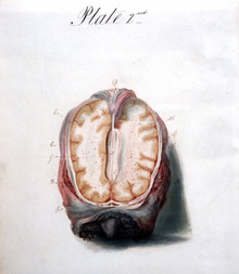 Illustration of Brain.png